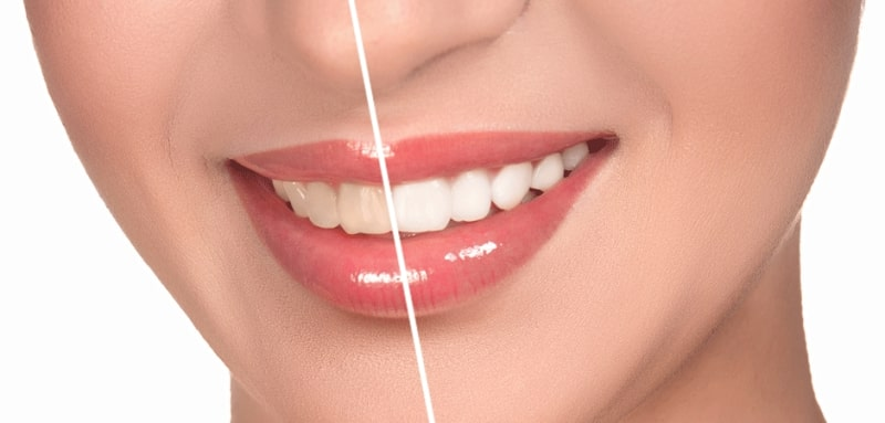Cosmetic Dentistry in Chennai