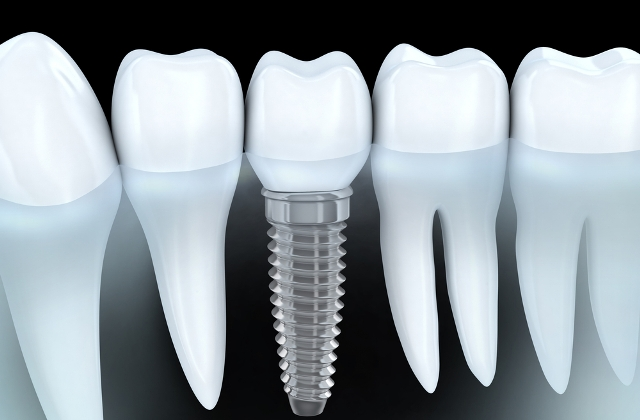 Dental-Implants Chennai