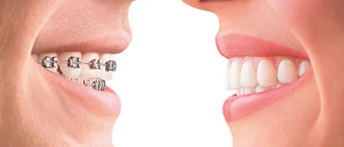 Orthodontist Treatment in chennai