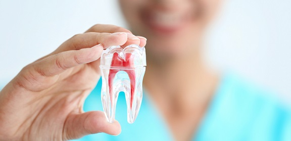 root canal treatment chennai